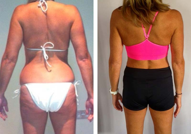 Image of In only four months, Tim`s methods brought about a spectacular transformation in Amanda`s body